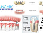 All on 4, same day teeth Dental Implant Treatment by Hungary Dental Implant in London and Budapest