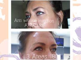 50% OFF Antiwrinkle injections and Dermal Filler