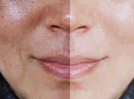 hyperpigmentation treatment for black skin