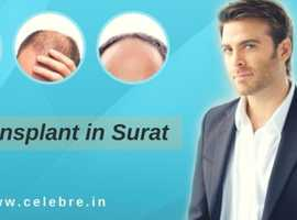 Hair Transplant in Surat  | Clbre
