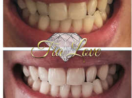 Teeth whitening 25th-26th JULY