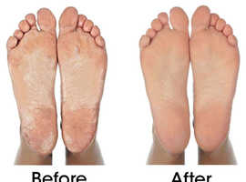 Foot Care. Struggling to reach your toes? We can help at home or at our clinic